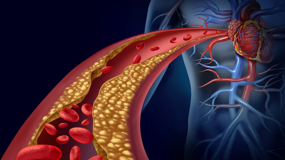 Geliştirilen Nano Polimerler Kalp Yetmezliğini Önleyebilir.